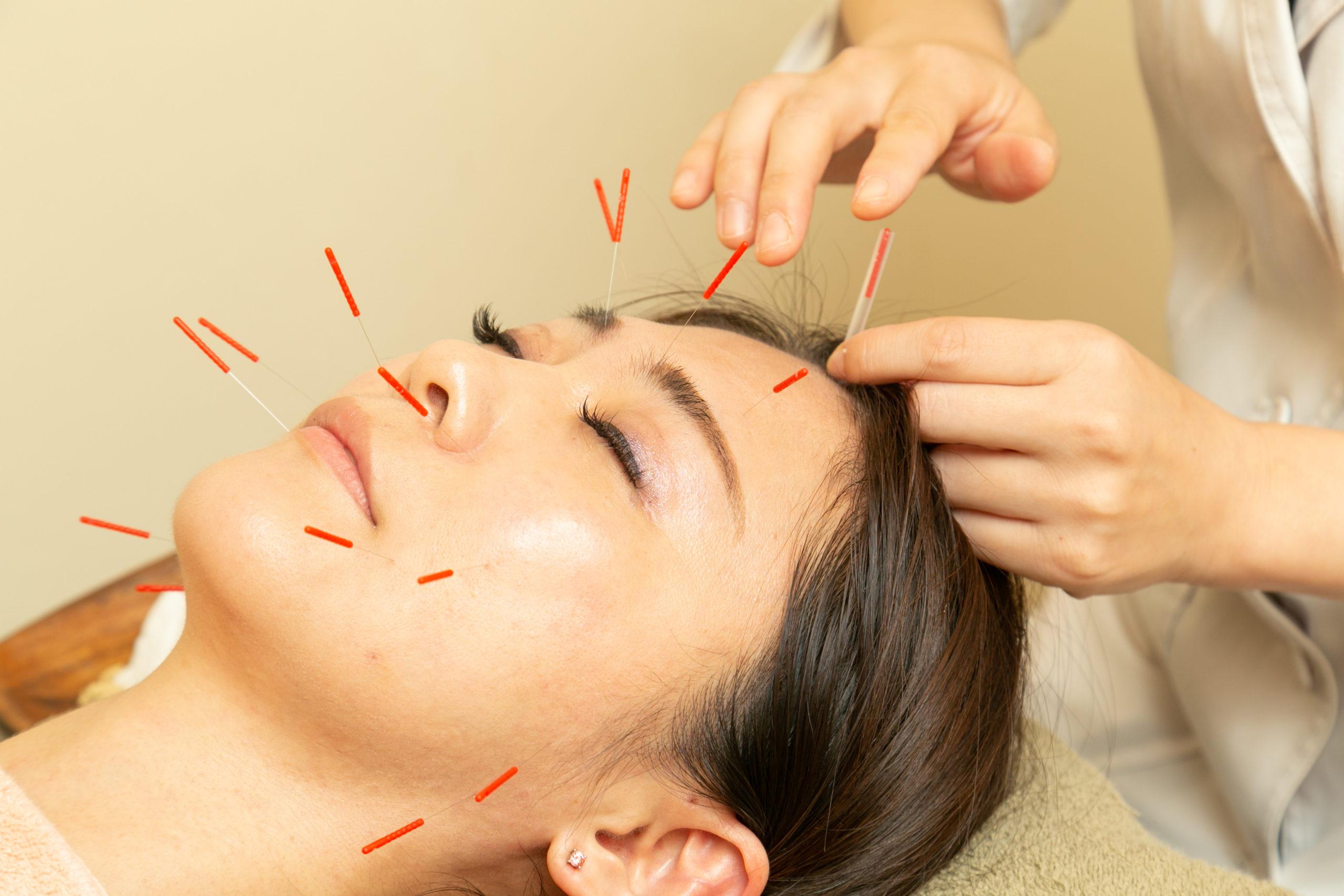 一般的な美容鍼灸
